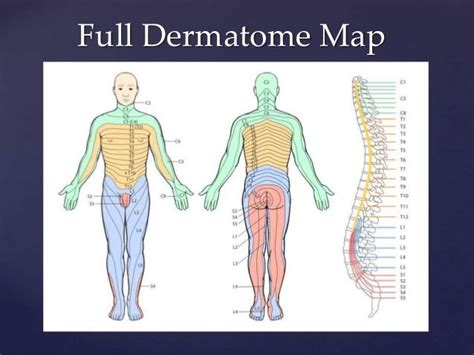 Pin on Pain Referral/Dermatomal Pttns