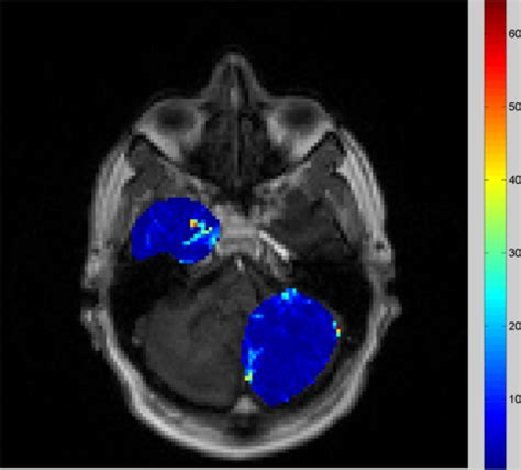 MATLAB: Show colorbar of a grayscale image in a figure