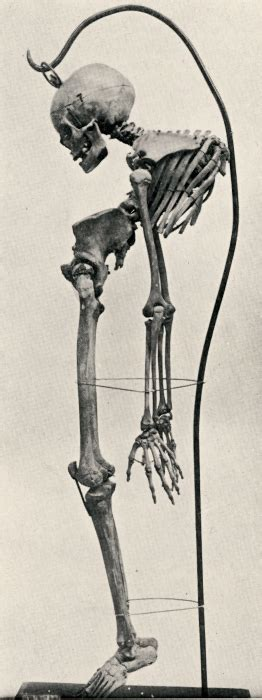 Young adult skeleton with tuberculosis spondylitis